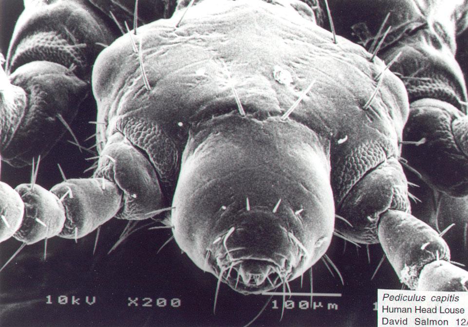 Fleas on humans head